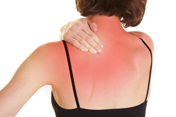 What are some treatment options for chemical burns on the back?