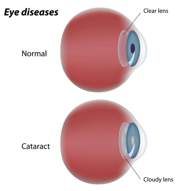 What happens during a pam test for cataracts?