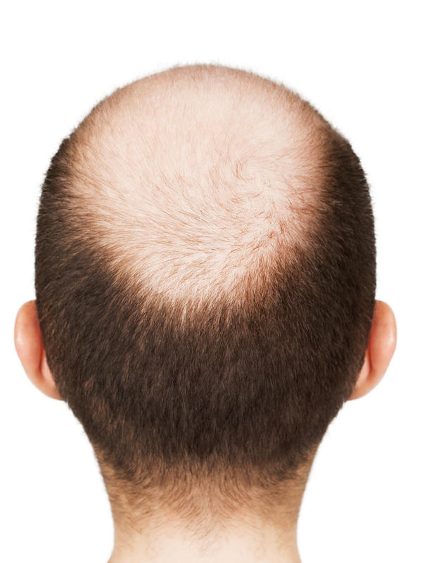 What can cause hair loss?