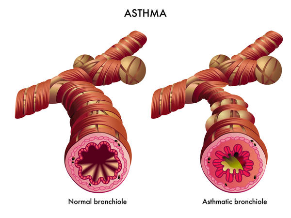 Can asthma in a child be caused by smoking when the child was in the womb?