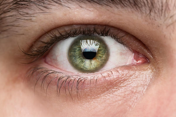 What medicated eye drops can be used to increase the dark color of the iris?