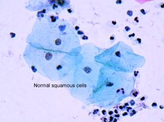 Describe the purpose of a keratinized stratified squamous cell (keratinocyte).?