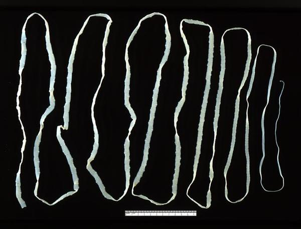 Can tapeworm infection become systemic? Can it invade the subcutaneous tissue (face, extremities, torso) in the form of swelling, tape-like drainage?