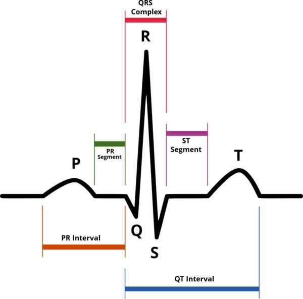 Can you tell me if on an ekg, what does the p to R wave stand for?