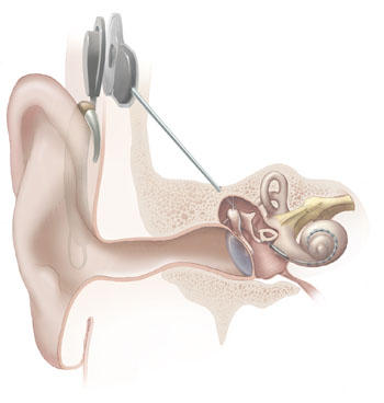 My dr. Checked my left ear, in the back of my ear i hear louder from the middle ear, so could the problem only be hardening in middle ear?