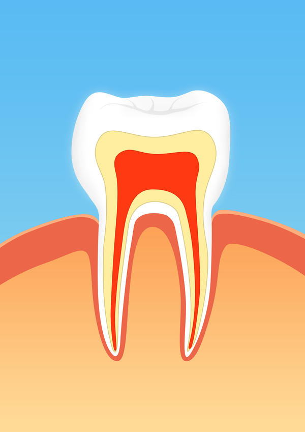 Is it okay if the nerve is not fully removed after root canal?