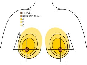 Age 34, not yet a mother, need to know if i shud go for asymmetrical breasts correction without implants before or after pregnancy. Any complications?