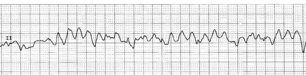 What's sinus tachyarrhythmia and its treatment?