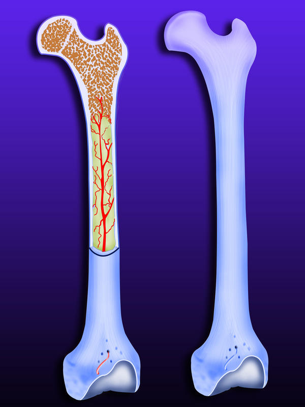 What is the worse scenario for bones with severe osteo and degenerative discs that have not been treated for 3 years that have a secondary cause?