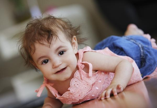 What are the signs of Down syndrome in a baby?