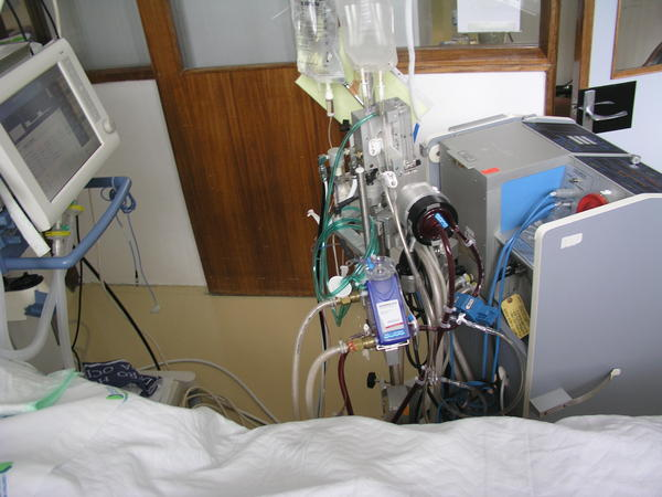 Under what circumstances is ecmo used for newborns? When is ecmo used, and how long do babies typically need it for?