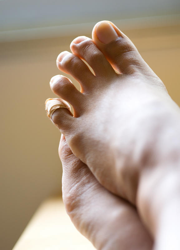 How to remove corns on your feet?