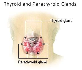 Known thyroid nodule, colloid area recurrent cysts, now pressure/pulling on neck especially lifting arm?