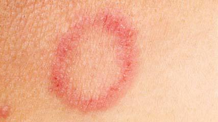 What are symptoms of candidiasis on the skin?