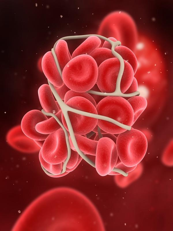 What is the definition or description of: thrombosis?