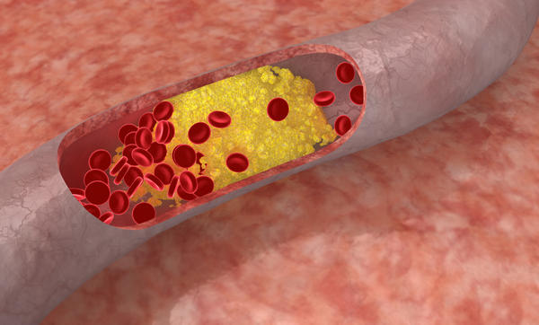 What should the average cholesterol level be for a person to be considered healthy?