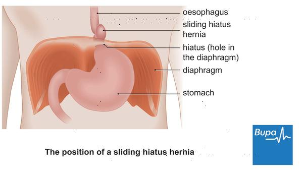 How is a hiatal hernia diagnosed?