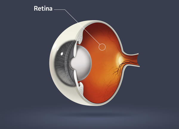 Have open angle glaucoma in 1 eye & use travatan. The iris of the treated eye looks like it has a white film over it. Is it from glaucoma or the drop?
