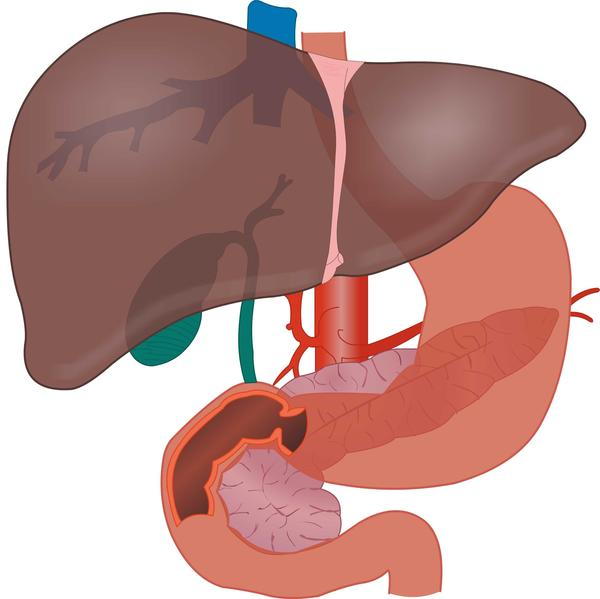 Can you provide an overview of how wilson disease affects the liver?