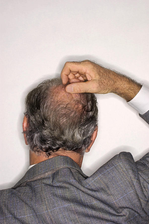 I discovered a painless lump on the back of my head. I am bald and you can see the swelling. What could it be?