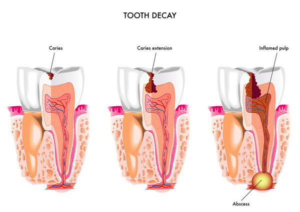 How are cavities formed?