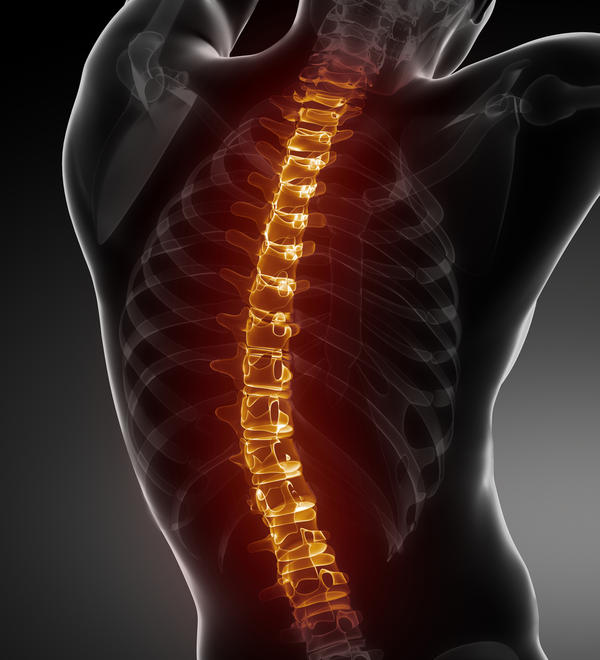 Why does a curved spine cause back ache?