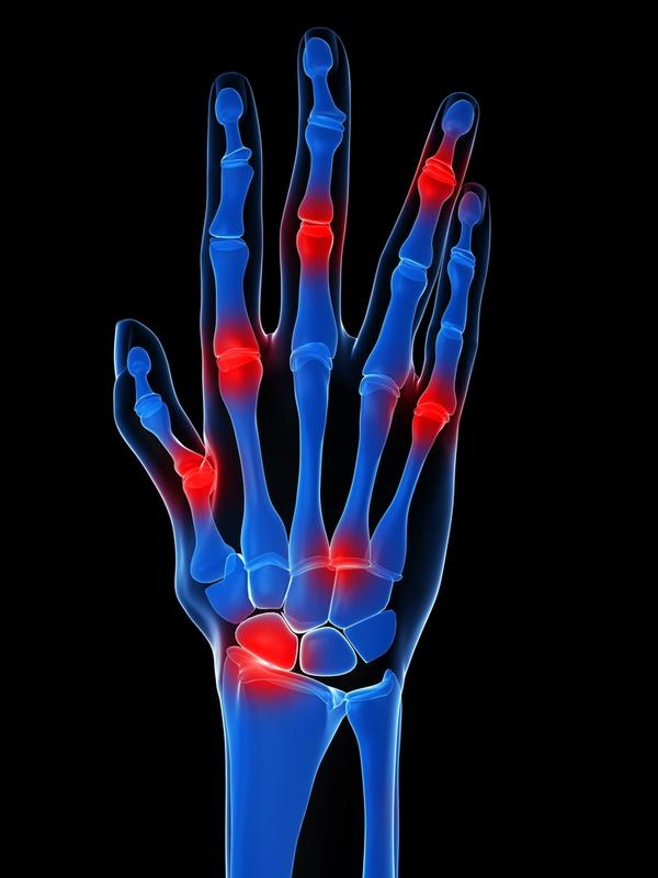 What could cause swollen hands with achy, painful joints, only in am, lasts apx hr, daily. Xray, blood and rheum'st show no arthritis.