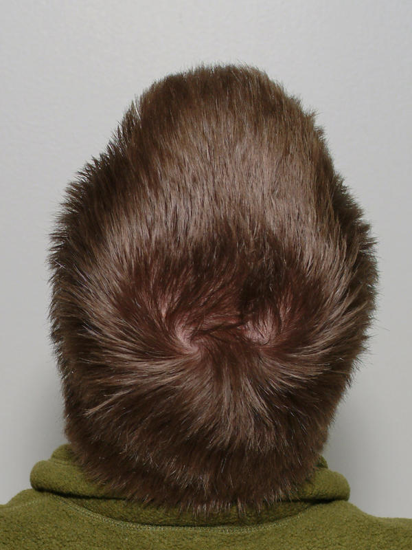What is the definition or description of: Wrinkled scalp?