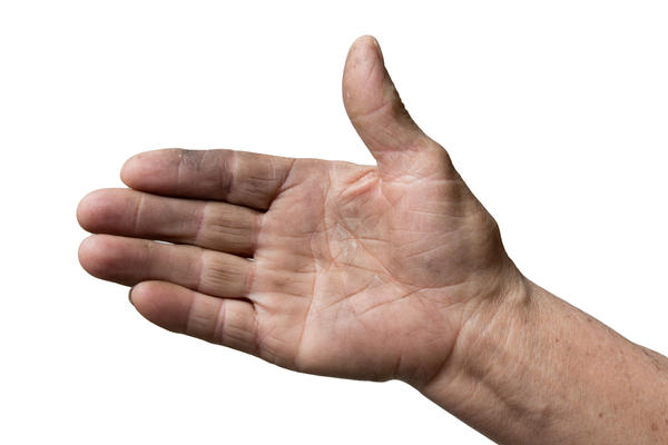 How long does swelling last following hand surgery?