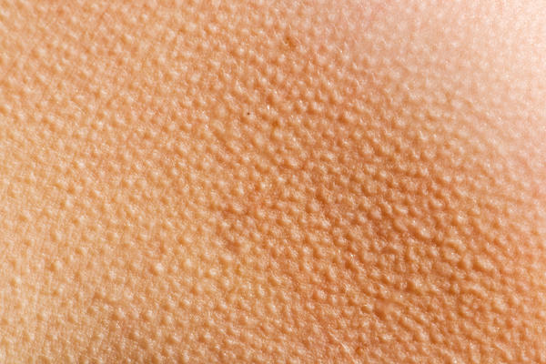 Could being in the sun a lot help reduce keratosis pilaris?