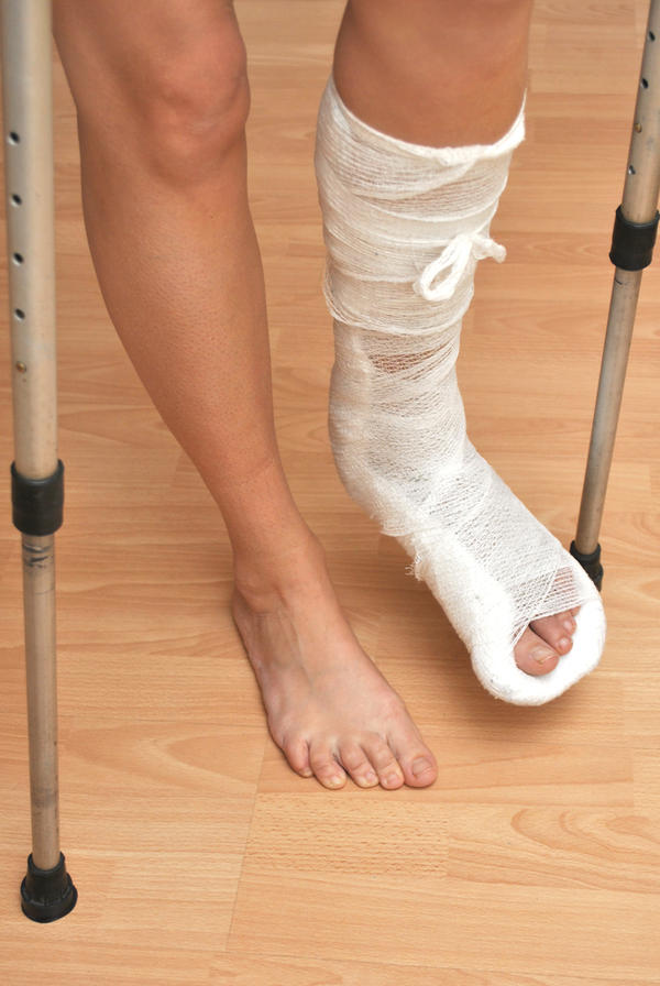How can you heal after removal of plates and screws of a broken ankle?