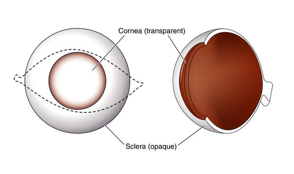 What happens to an individual's vision if the cornea is scratched?