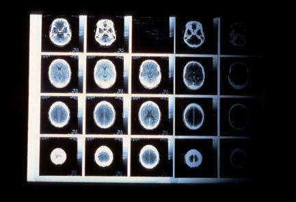 Does a CT scan show MS lesions?