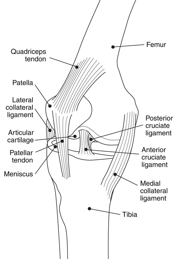 Would i need to get a knee brace after a tabial plateau fracture?