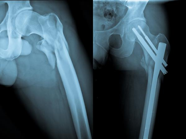 If an 86 yr old man falls and is hospitalized, and complains about thigh pain, would it be standard practice to xray his hip?