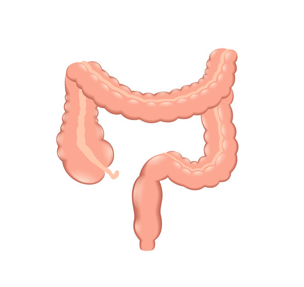 Are colorectal cancer and colon cancer the same thing with different locations?