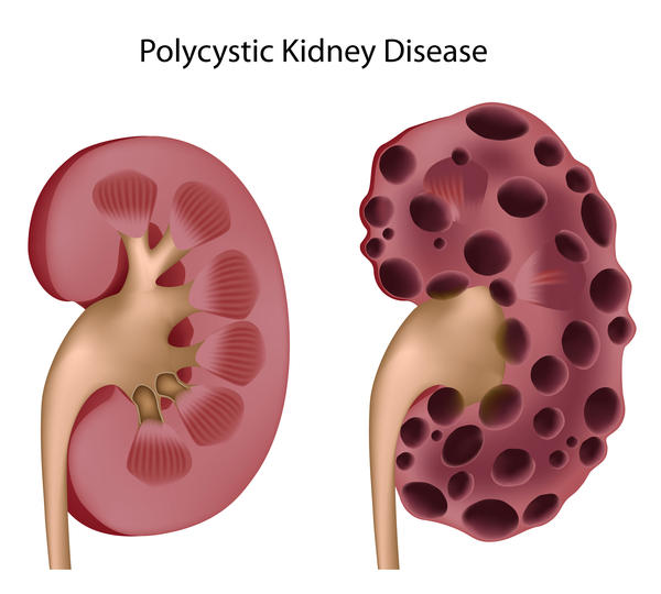 Are polycysts dangerous?