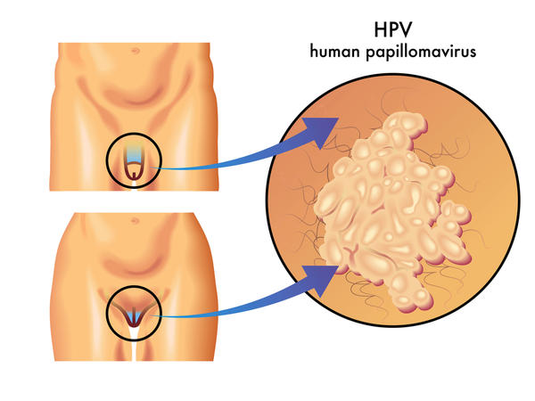 My girlfriend has hpv. Can i get it if she use saliva as a lubricant when giving me a a handjob? Also can she give me oral sex?
