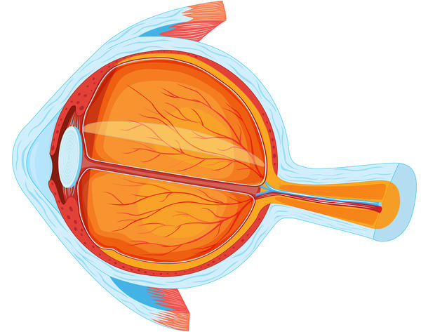 What is it called when fluid builds up in the eye and causes damage to the optic nerve?