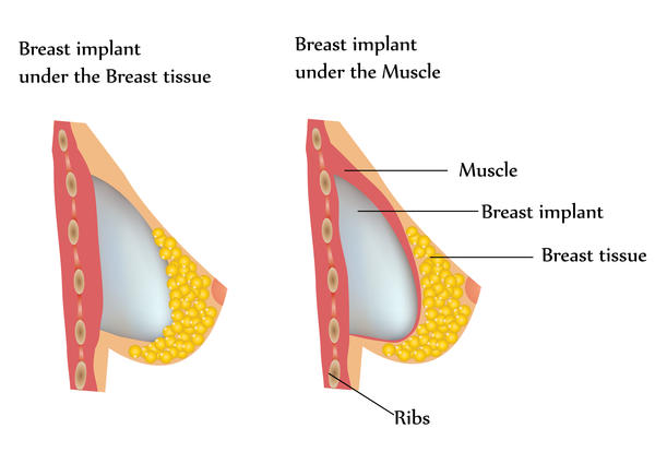 What type/placement of breast implants works best for a woman who lifts weights and has a muscular chest?