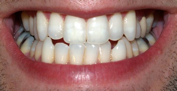Before I see the dentist again, can a 2-3 mm space between two (solid in place) lower front teeth be bonded to prevent shifting later on?