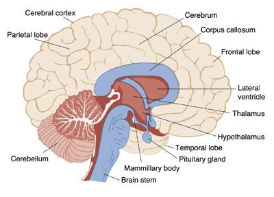 What causes brain malaria?