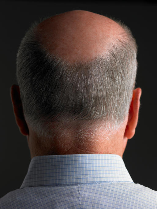 Is  hair restoration surgery successful?
