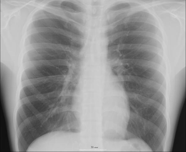 Xray showed sever bilateral inflated, lungs shagged allergic changes, small cardiac size what is that mean, 32 male smoker coughing for month am I die?