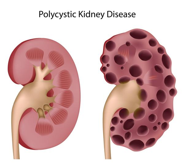 I have MultiCystic Dysplastic Kidney Disease, what complications involving pregnancy should I be aware of (Difficulty getting pregnant, preeclampsia etc?