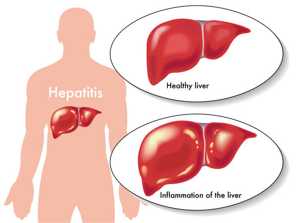 What are the differences between viral hepatitis and alcoholic hepatitis?