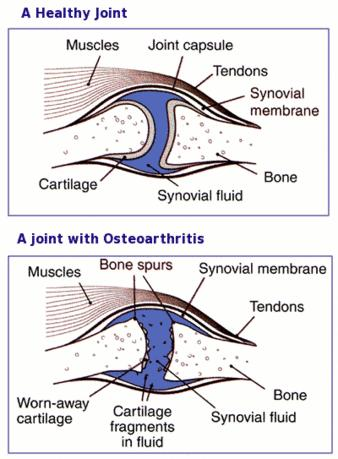 What is the main difference between tendonitis of the elbow or osteoarthritis of the elbow?