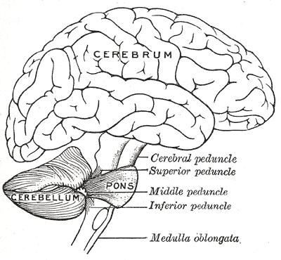 Brain malformation located in cerebellum. What does this mean?