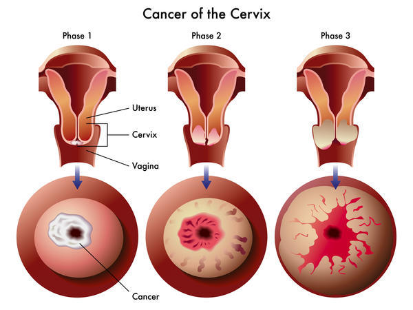 Where is cervical cancer located in your body?
