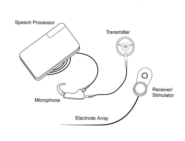 What kind of batteries are used for cochlear implant?